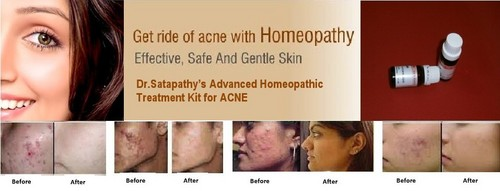Acne Treatment (Advanced Homeopathy), Cure For Any Types Of Acne