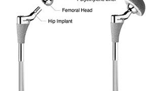 Surgical Implants