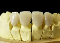 Dental Pfm-Porcelain Fused To Cobalt-Chrome Alloy Crown And Bridge