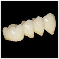 Dental Porcelain Fused To Metal Crown