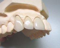 Dental Porcelain Fused to Metal Crown (PFM Pure Titanium)