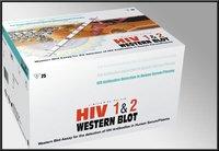 Hiv 1&2 Western Blot