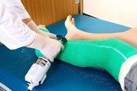 Orthopedic Fiberglass Surgical Casting Tape