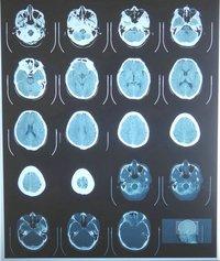 Blue Dry Medical X-Ray Film