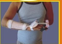 Palsy Splint (Fix Wrist)