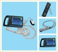 Digital Palmsmart Ultrasound Scanner