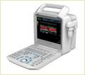 Ss-1000 Color Doppler System Ultrasound Scanner
