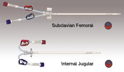 Dialysis Catheter - Manufacturers, Suppliers & Exporters