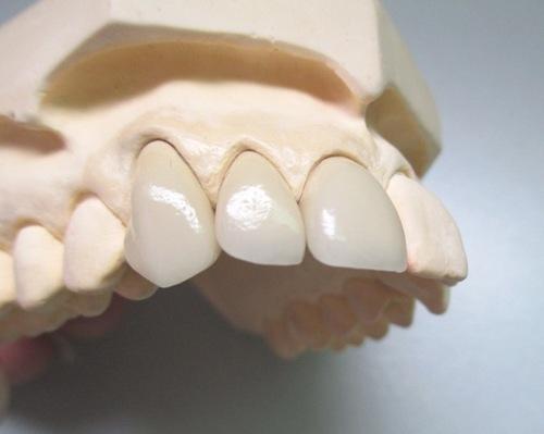 Dental Porcelain Fused To Metal Crown PFM Pure Titanium In Baoan District