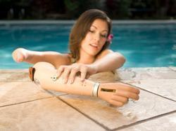 Myo-Electric Artificial Limbs