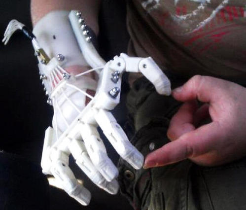 3D Printed Prosthetics And Health Care Devices in  Banjara Hills