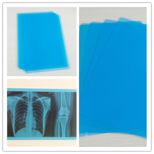 Used Blue X Ray Dry Medical Film in   Beisong HWY Chedun Town Songjiang