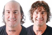 Non-Surgical Hair Replacement Service