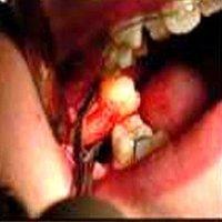 Hemocoll Dental