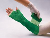 Fiberglass Orthopedic Casting Tape