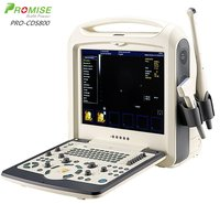 Portable Color Ultrasound System