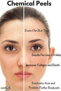 Exclusive Antiaging Acne Peels