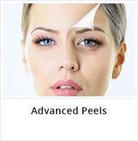 Customized Advanced Peel Treatment Service