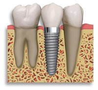 Dental Inplants