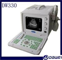White And Black Full Digital Portable Ultrasound Equipment