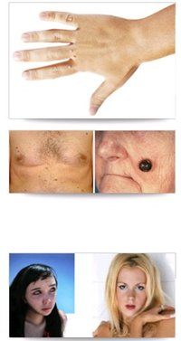 Moles Warts Tags And Freckles Skin Care Service