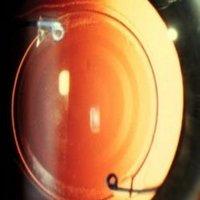 Multifocal Intraocular Lens